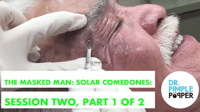 The Masked Man, Extensive Solar Comedones: Session Two, Part 1 of 2