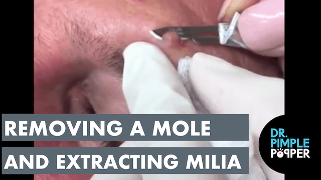 Removing a Mole and Extracting Milia