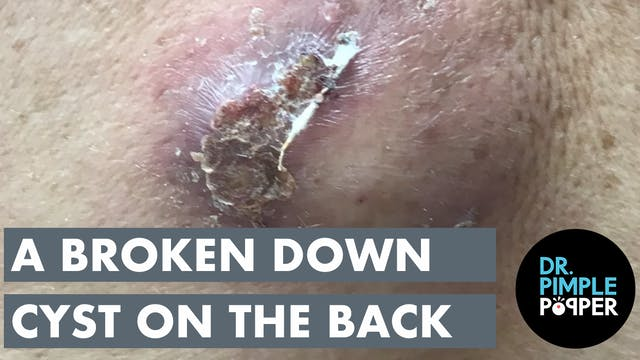 A Broken Down Cyst on the Back