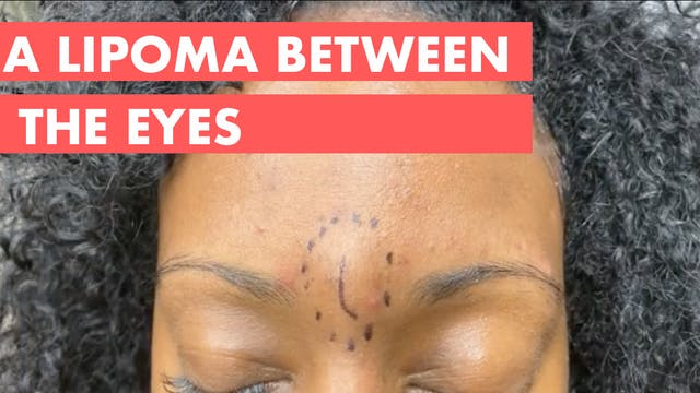 A Lipoma Between the Eyes