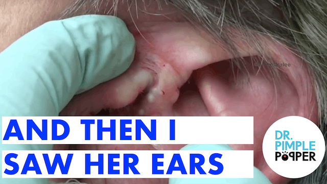 And Then I Saw Her Ears