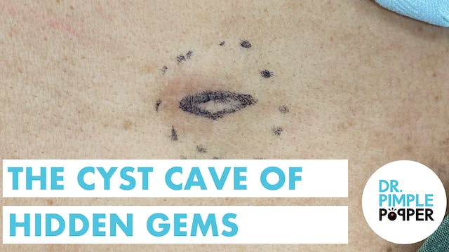 The Cyst Cave of Hidden Gems