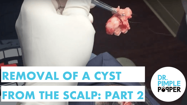Part 2 Removal of a Cyst from the Scalp, Buzzfeed was following me for the day!
