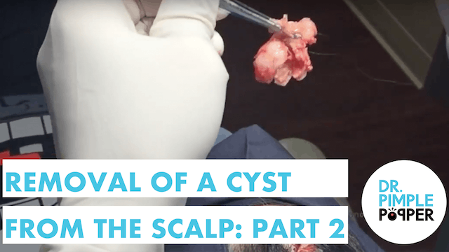 Part 2 Removal of a Cyst from the Sca...