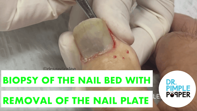 Biopsy of the Nail Bed with Removal o...