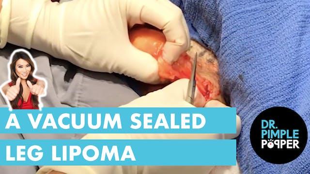 A Vacuum Sealed Leg Lipoma