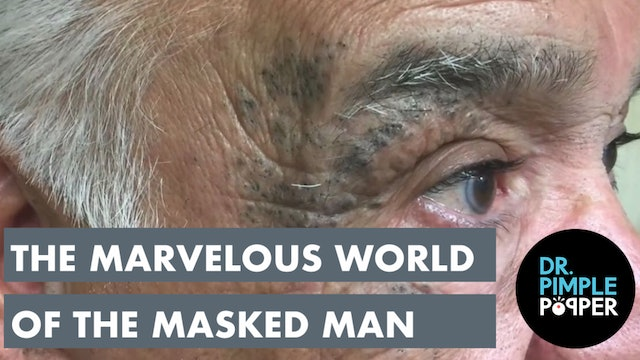 Dr. Pimple Popper Presents: The Marvelous World of the Masked Man