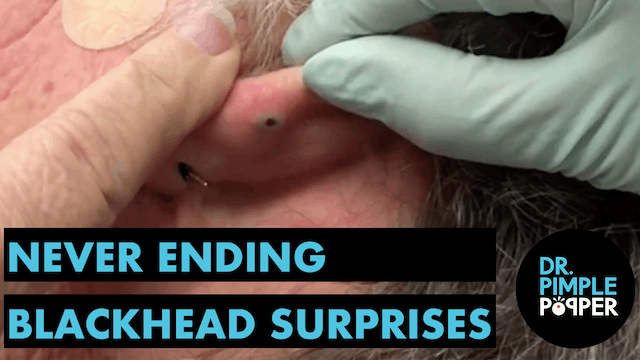 Never Ending Blackhead Surprises!