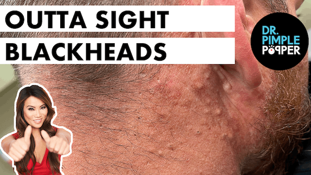 Outta Sight Blackheads