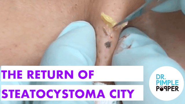 The Return of Steatocystoma City