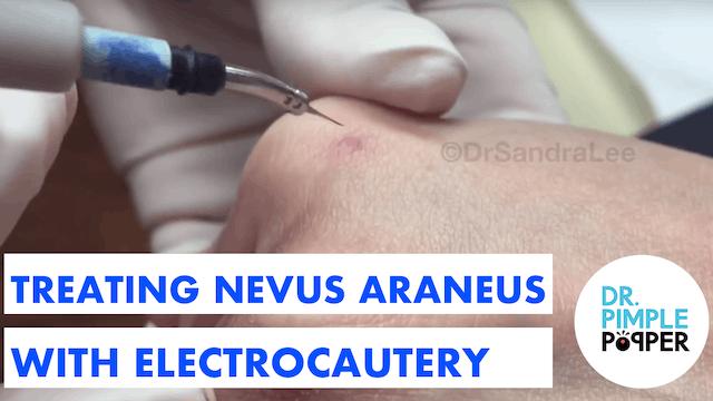 Treating Nevus Araneus (Broken Capill...