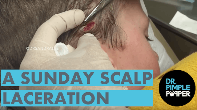 A Sunday Scalp Lasceration