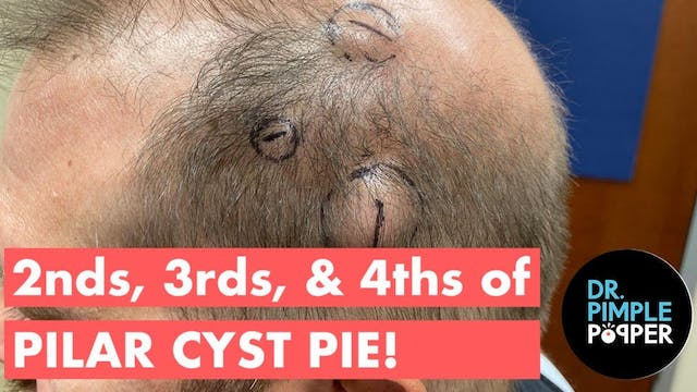2nds, 3rds, & 4ths of PILAR CYST PIE!