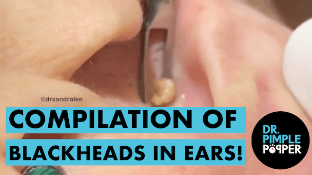A Compilation of Blackheads in The EARS
