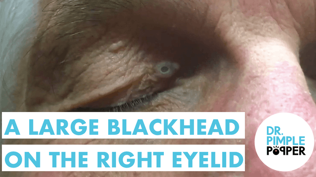 A Large Blackhead on the Right Eyelid...