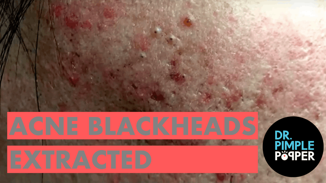 Acne blackheads extracted, Dr Sandra Lee