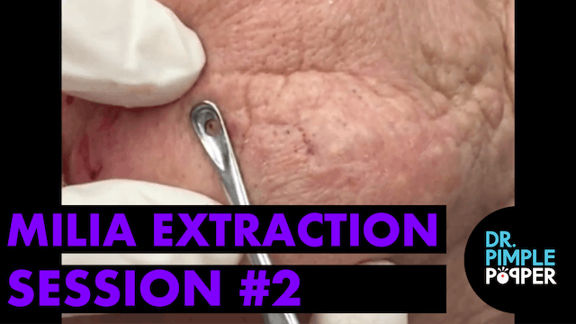 Milia extraction, session #2. For medical education- NSFE.