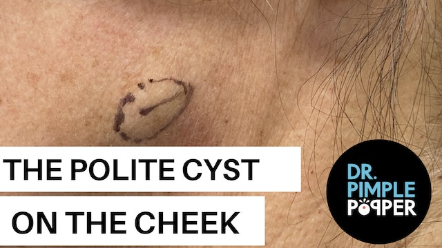A Polite Cyst on the Cheek