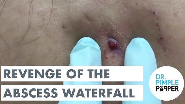 Revenge of the Abscess Waterfall