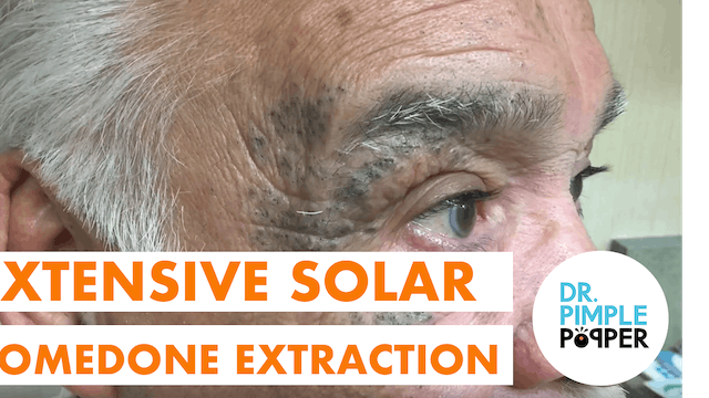 Extensive Solar Comedone Extraction (Masked Man Part 1)