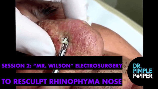 "Session 2: ""Mr Wilson"" Electrosurgery..."