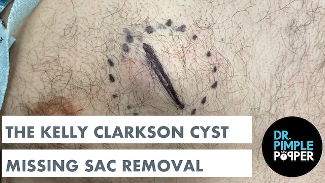 The Kelly Clarkson Cyst: WITH FULL SAC REMOVAL