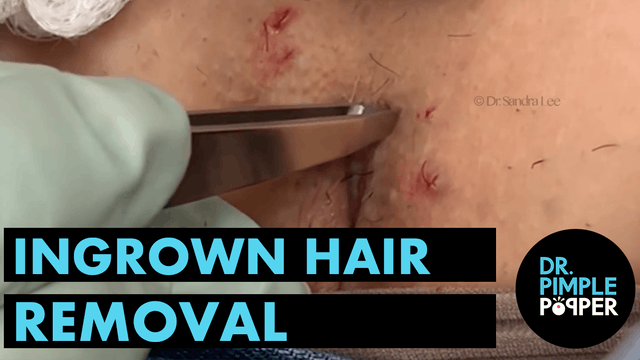 Ingrown Hair Removal