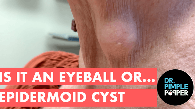 Is It an Eyeball...or Epidermoid Cyst?