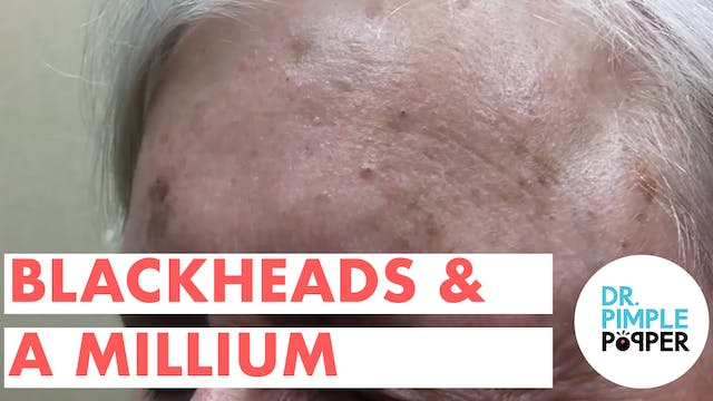Blackheads and a Millium!