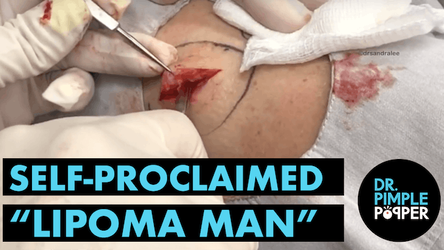 "Introducing... (Self Proclaimed) ""Lipoma Man"""