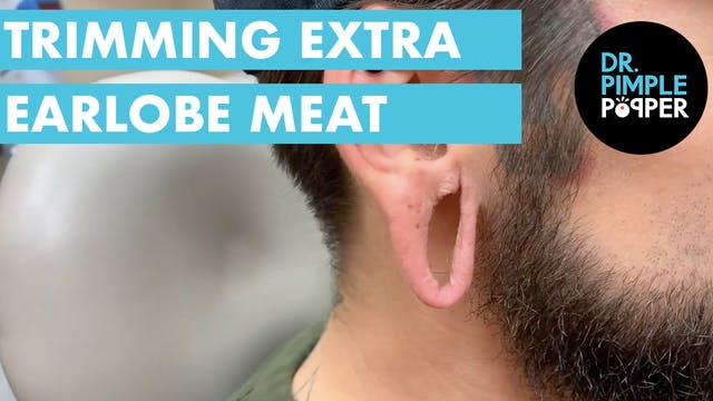 Trimming Off Extra Earlobe Meat