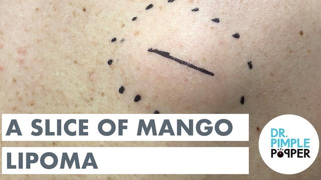 A Slice of Mango Lipoma