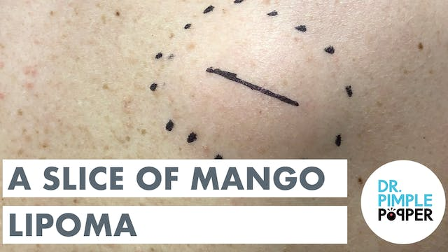 A Slice of Mango Lipoma