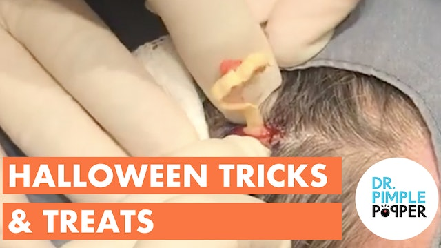Dr. Pimple Popper: Halloween Tricks & Treats