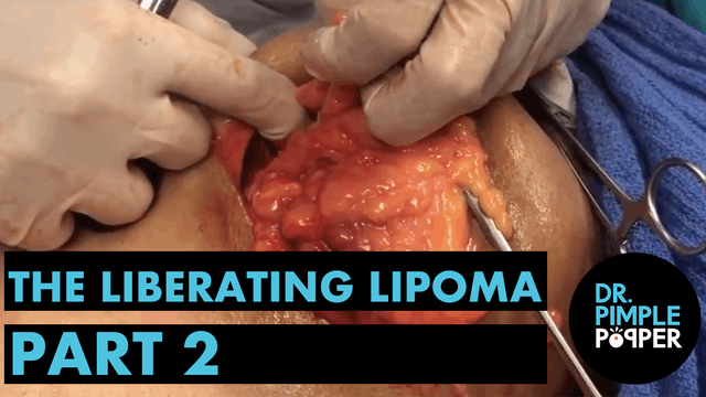 The Liberating Lipoma, Part Two