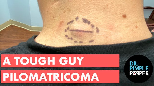 A Tough Guy Pilomatricoma