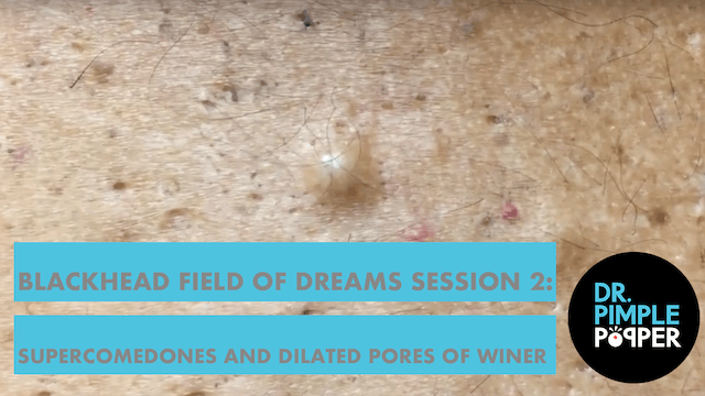 Blackhead Field of Dreams Session 2: ...