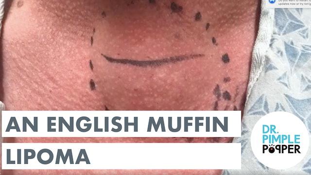 An English Muffin Lipoma