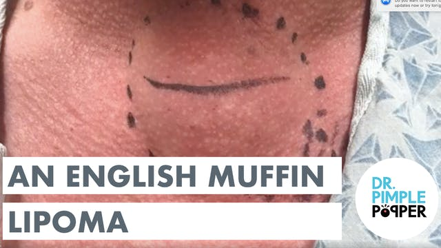 An English Muffin Lipoma
