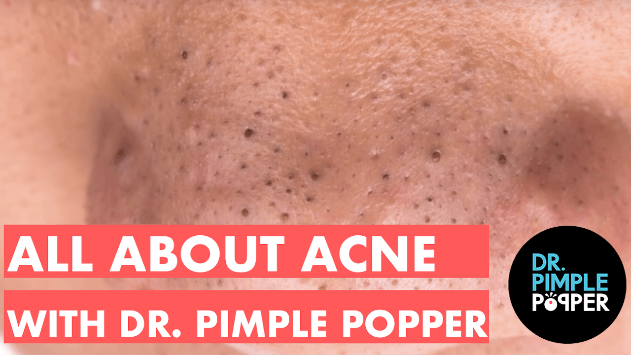 All About Acne With Dr Pimple Popper Skincare How To S