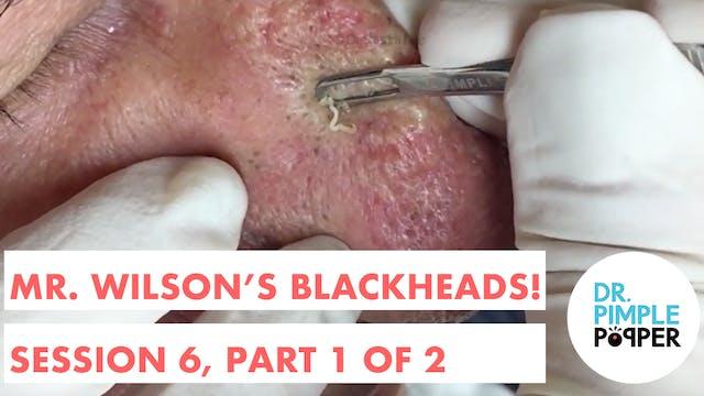 Mr Wilson's Blackheads! Session 6, Pa...