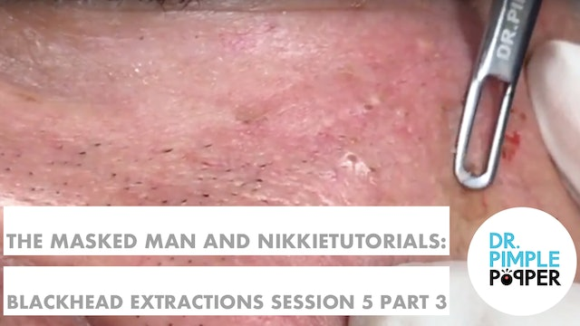 The Masked Man, Dr Pimple Popper, & NikkieTutorials! Session 5, Part 3