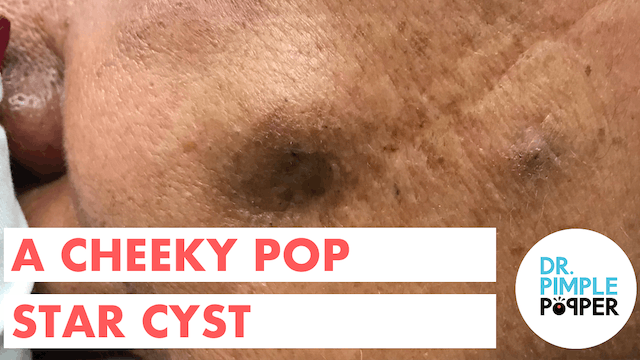 A Cheeky Pop Star Cyst