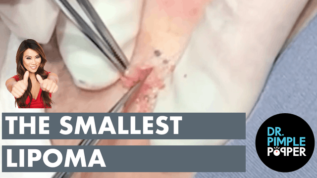 The Smallest Lipoma