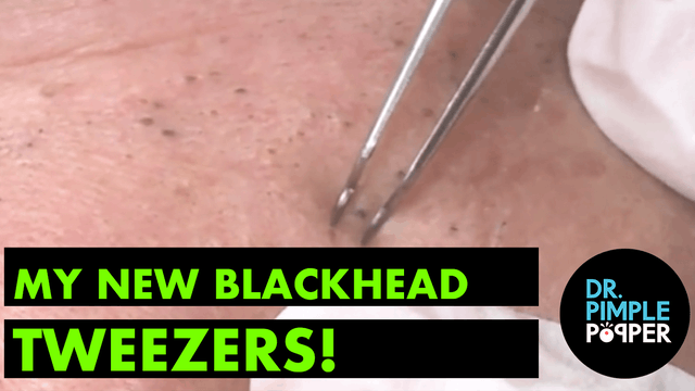 My New Blackhead Tweezers!