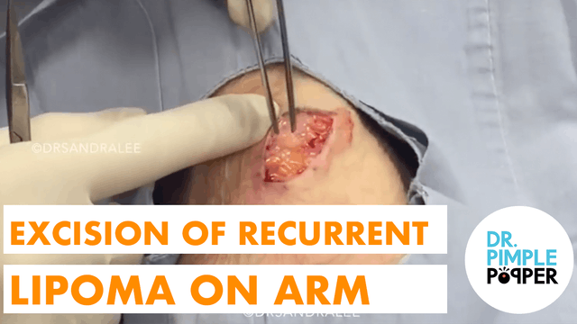 Excision of a Recurrent Lipoma