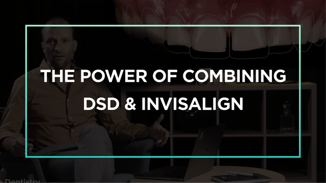 The power of combining DSD & Invisalign