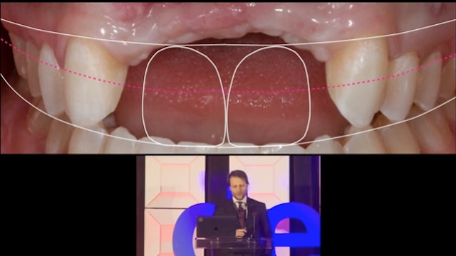 Is smile design under control? The real challenges of a smile rehabilitator