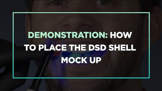 Demonstration: how to place the DSD Shell Mock up