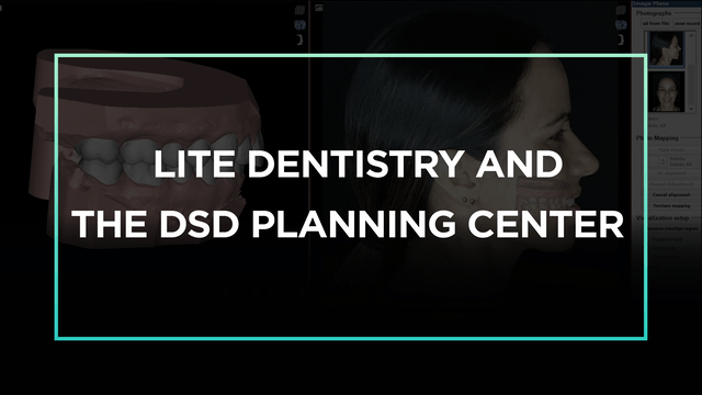 Lite Dentistry and the DSD Planning Center